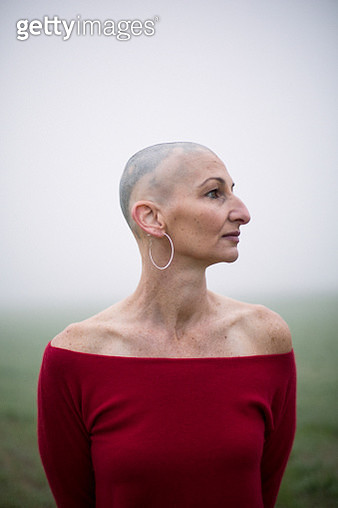 Portrait of woman with alopecia - gettyimageskorea