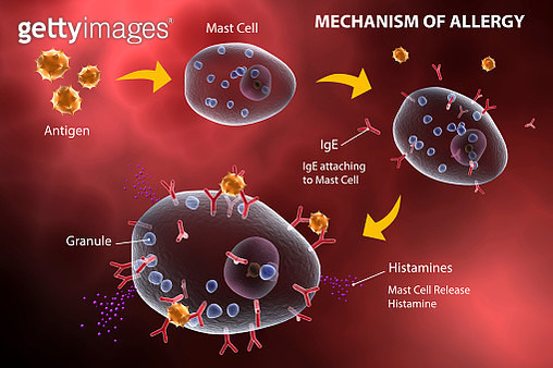 Mast cell releasing histamine due to allergic reaction. - gettyimageskorea
