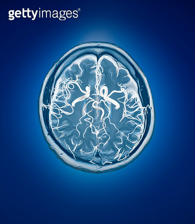 blood vessel with human brain MRI - gettyimageskorea