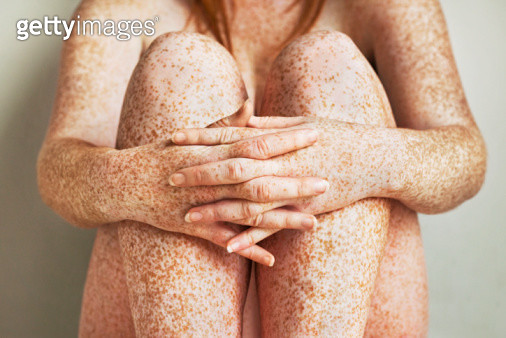 Close up of freckled girl's hands folded in front of her legs  - gettyimageskorea