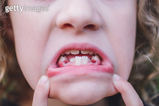 Girl showing Mouth with teeth missing - gettyimageskorea