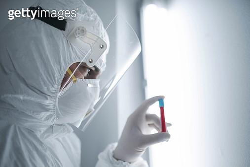 analysis of a coronavirus sample - gettyimageskorea