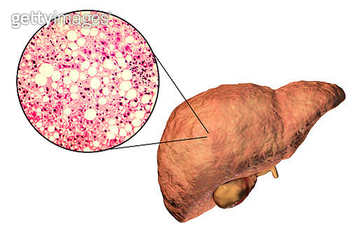 Fatty liver, illustration and micrograph - gettyimageskorea