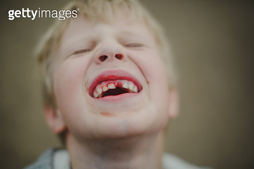 Boy with bleeding tooth - gettyimageskorea