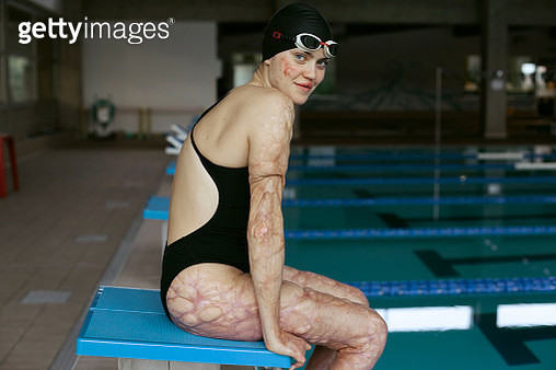 Paralympic athlete, girl with disability, Strong, proud - gettyimageskorea
