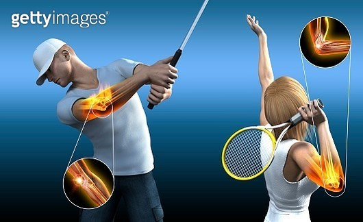 Sports elbow injuries, illustration - gettyimageskorea
