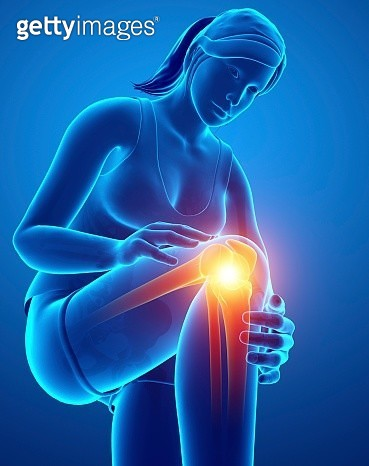 Woman with knee pain, illustration - gettyimageskorea