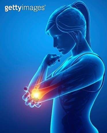 Woman with elbow pain, illustration - gettyimageskorea