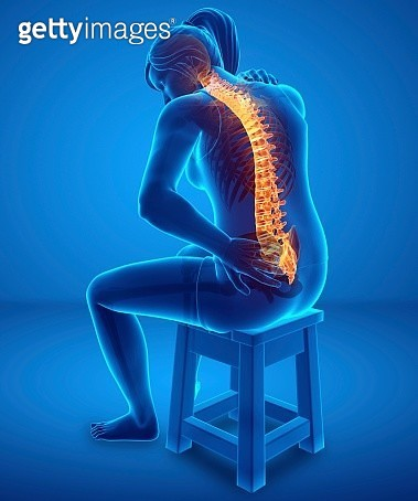 Woman with back pain, illustration - gettyimageskorea