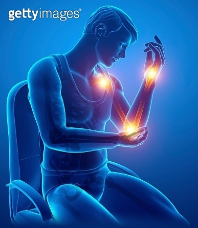 Man with arm pain, illustration - gettyimageskorea
