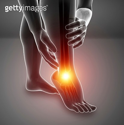 Man with foot pain, illustration - gettyimageskorea